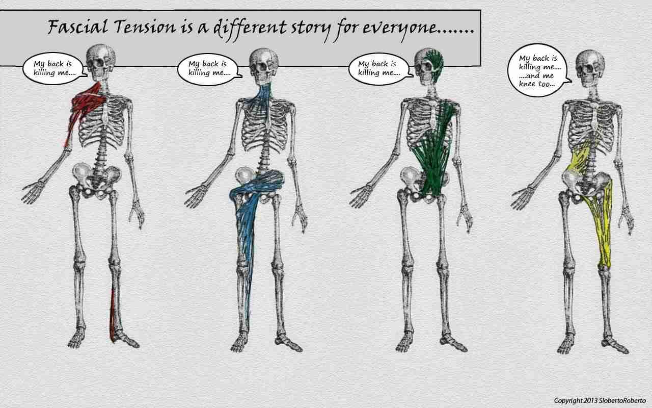 Illustration of 4 skeletons with different back pain origins.